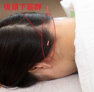 後頭下筋群の鍼治療