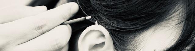 耳介への透熱灸