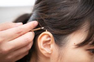 めまいの鍼灸治療