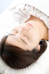 美容鍼灸治療
