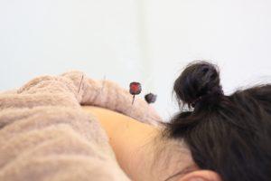 首の灸頭鍼
